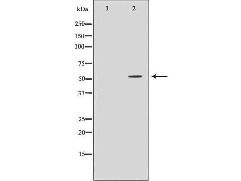Image no. 1 for anti-Lymphocyte-Specific Protein tyrosine Kinase (LCK) antibody (ABIN6262930)