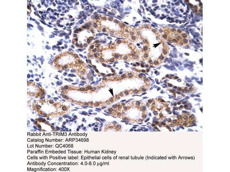 Immunohistochemistry (IHC) image for anti-Tripartite Motif Containing 3 (TRIM3) (N-Term) antibody (ABIN183068)