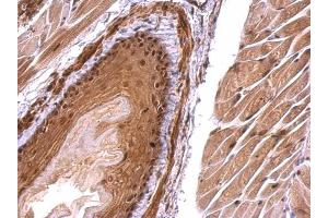 Immunohistochemistry (IHC) image for anti-Monoglyceride Lipase (MGLL) (Center) antibody (ABIN2855646)