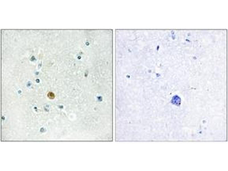 Immunohistochemistry (IHC) image for anti-Interferon Regulatory Factor 3 (IRF3) (AA 362-411) antibody (ABIN1532452)