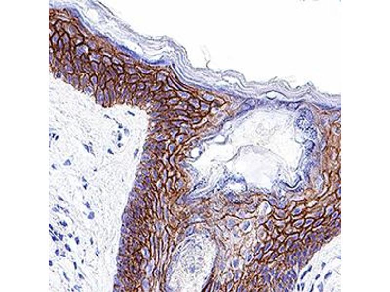 Immunohistochemistry (IHC) image for anti-Cadherin 1, Type 1, E-Cadherin (Epithelial) (CDH1) (AA 155-707) antibody (ABIN4899264)