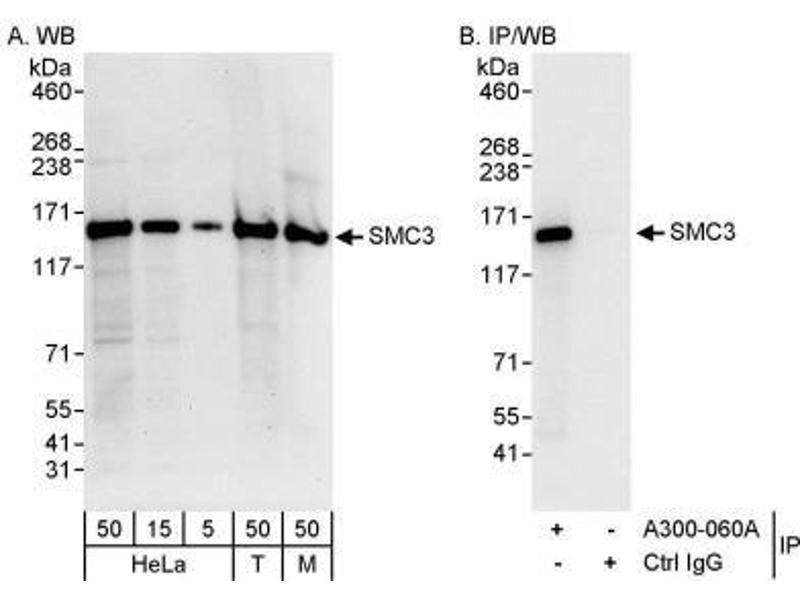 Western Blotting (WB) image for anti-Structural Maintenance of Chromosomes 3 (SMC3) (C-Term) antibody (ABIN151536)