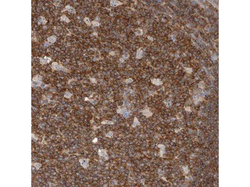 Immunohistochemistry (Paraffin-embedded Sections) (IHC (p)) image for anti-Cas-Br-M (Murine) Ecotropic Retroviral Transforming Sequence (CBL) antibody (ABIN4288402)