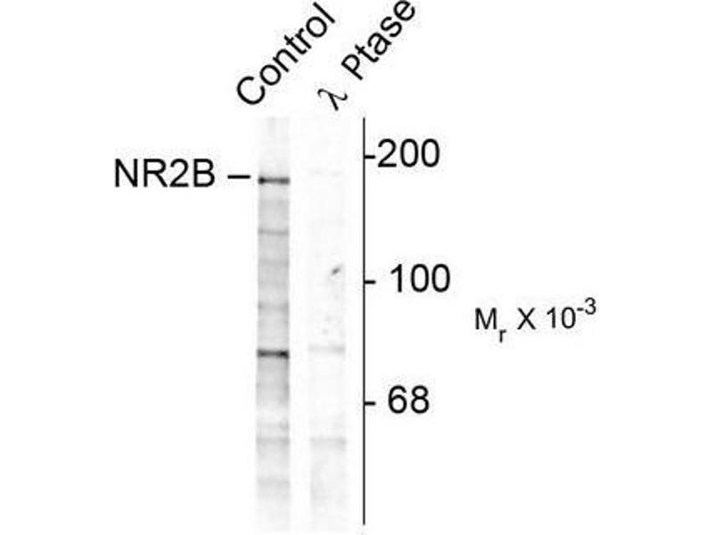 Image no. 1 for anti-Glutamate Receptor, Ionotropic, N-Methyl D-Aspartate 2B (GRIN2B) (pTyr1252) antibody (ABIN372685)