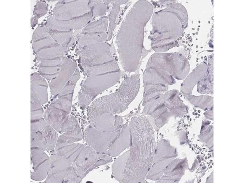 Immunohistochemistry (Paraffin-embedded Sections) (IHC (p)) image for anti-phosphodiesterase 8B (PDE8B) antibody (ABIN4344454)