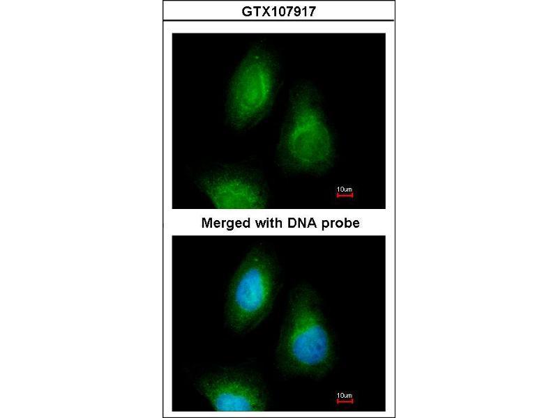 Indirect Immunofluorescence Assay (IFA) image for anti-Selenophosphate Synthetase 2 (SEPHS2) (AA 186-448) antibody (ABIN554132)