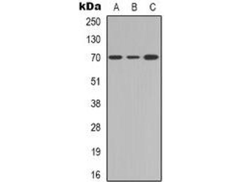 Western Blotting (WB) image for anti-Interleukin 2 Receptor, beta (IL2RB) antibody (ABIN2957843)