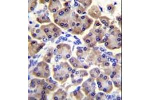 Immunohistochemistry (Paraffin-embedded Sections) (IHC (p)) image for anti-Mitochondrial Ribosomal Protein S12 (MRPS12) (AA 35-67), (Middle Region) antibody (ABIN953516)
