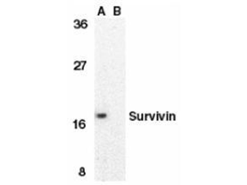 Western Blotting (WB) image for anti-BIRC5 antibody (Baculoviral IAP Repeat-Containing 5) (C-Term) (ABIN500841)