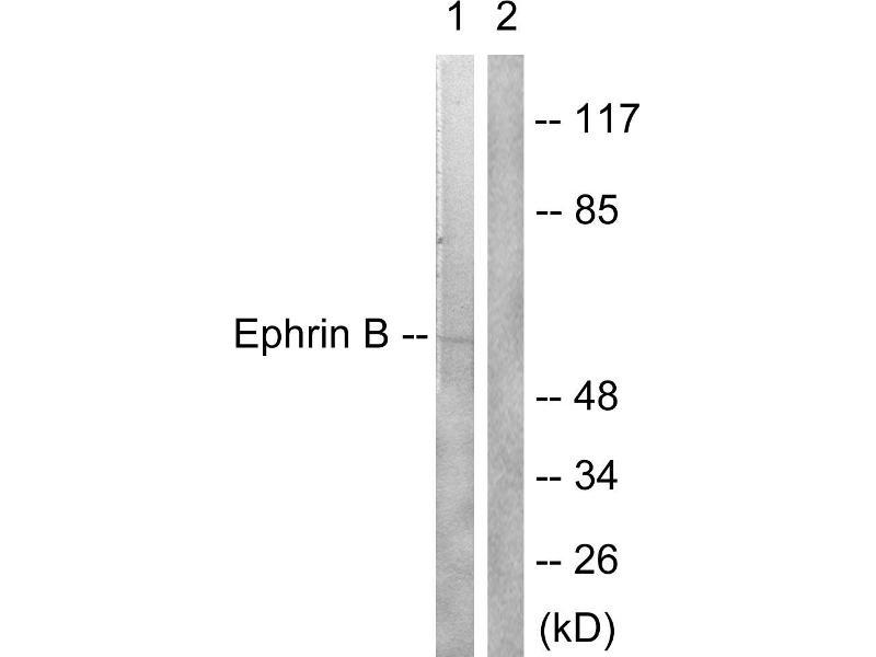 Western Blotting (WB) image for anti-Ephrin B2 antibody (EFNB2) (Tyr330) (ABIN2164433)