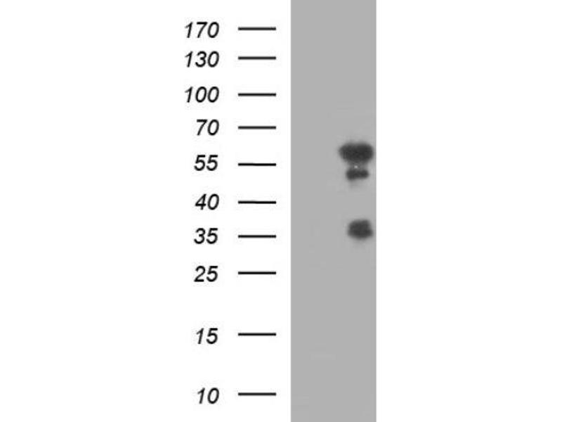 Western Blotting (WB) image for anti-Interferon Regulatory Factor 5 (IRF5) antibody (ABIN4327589)