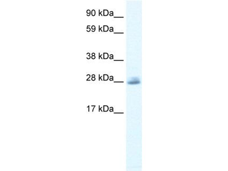 Western Blotting (WB) image for anti-Chloride Intracellular Channel 5 (CLIC5) (C-Term) antibody (ABIN2776219)