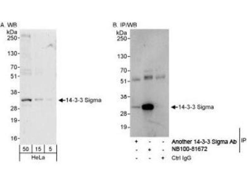 Immunoprecipitation (IP) image for anti-Stratifin (SFN) (AA 198-248) antibody (ABIN4276701)