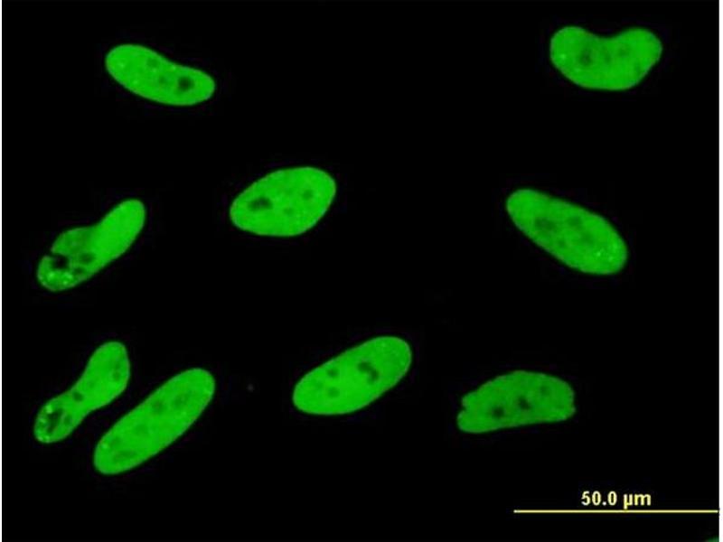 Immunofluorescence (IF) image for anti-SGK1 antibody (serum/glucocorticoid Regulated Kinase 1) (AA 1-90) (ABIN562851)