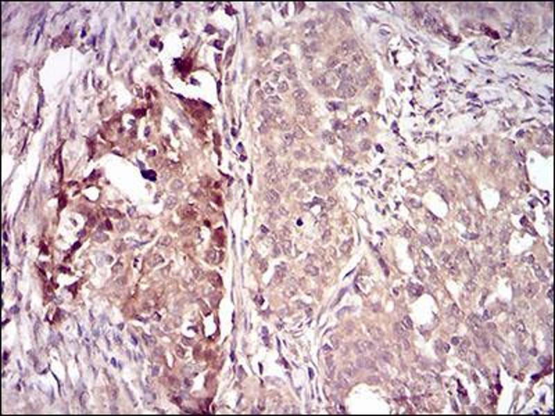 Immunohistochemistry (IHC) image for anti-Villin 1 (VIL1) (AA 1-209) antibody (ABIN5542405)