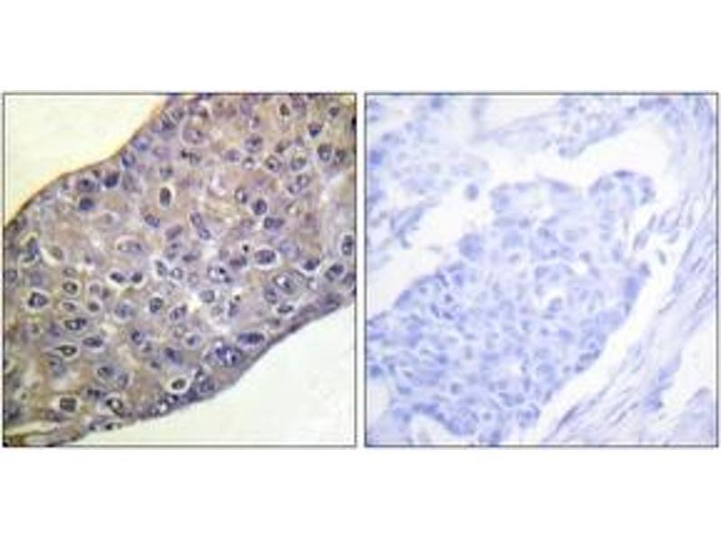 Immunohistochemistry (IHC) image for anti-RHOA antibody (Ras Homolog Gene Family, Member A) (ABIN1532406)