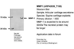Image no. 2 for anti-Matrix Metallopeptidase 1 (Interstitial Collagenase) (MMP1) (N-Term) antibody (ABIN2777119)