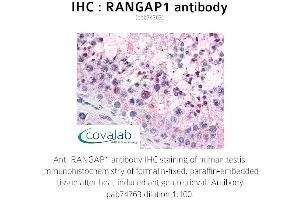 Image no. 2 for anti-Ran GTPase Activating Protein 1 (RANGAP1) antibody (ABIN1738728)