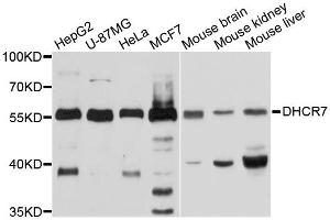 Image no. 1 for anti-7-Dehydrocholesterol Reductase (DHCR7) antibody (ABIN4903478)
