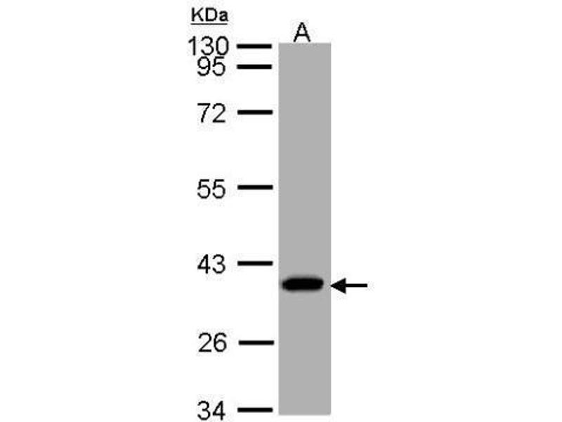 Western Blotting (WB) image for anti-Succinate-CoA Ligase, alpha Subunit (SUCLG1) (full length) antibody (ABIN2856658)