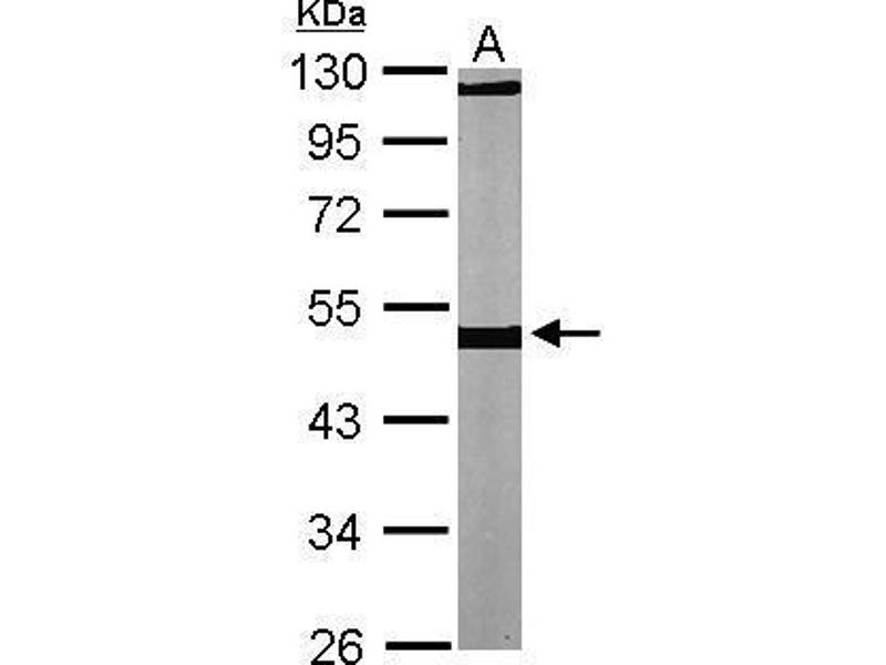 Western Blotting (WB) image for anti-TUBB antibody (Tubulin, beta) (Center) (ABIN2856496)