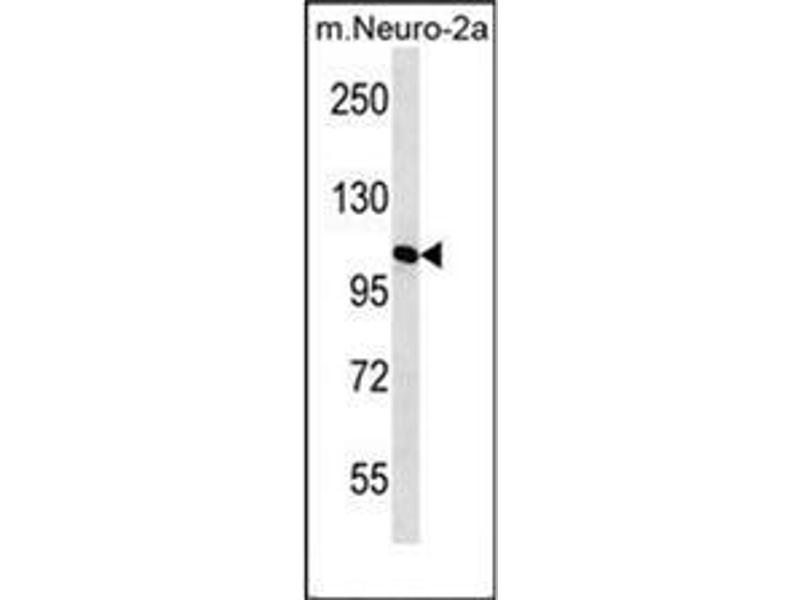 Western Blotting (WB) image for anti-Mannosidase, Alpha, Class 2A, Member 2 (MAN2A2) (AA 766-796), (Middle Region) antibody (ABIN953290)