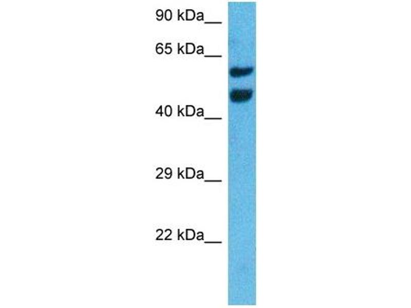 Western Blotting (WB) image for anti-Nuclear Receptor Subfamily 4, Group A, Member 3 (NR4A3) (Middle Region) antibody (ABIN2782304)
