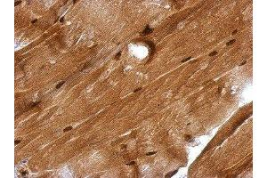 Immunohistochemistry (Paraffin-embedded Sections) (IHC (p)) image for anti-Glucocorticoid Modulatory Element Binding Protein 1 (GMEB1) (Center) antibody (ABIN4315206)
