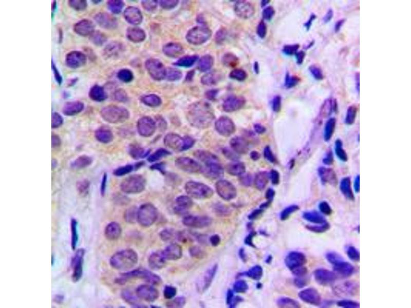 Immunohistochemistry (IHC) image for anti-BAD antibody (BCL2-Associated Agonist of Cell Death) (C-Term) (ABIN2704517)