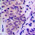 anti-BAD anticorps (BCL2-Associated Agonist of Cell Death) (C-Term)