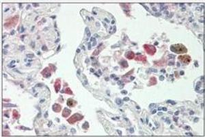 Immunohistochemistry (Paraffin-embedded Sections) (IHC (p)) image for anti-WAS Protein Family, Member 2 (WASF2) (Internal Region) antibody (ABIN5611704)