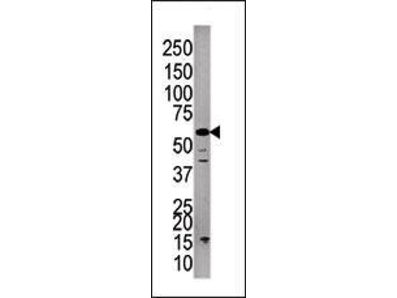 Western Blotting (WB) image for anti-PPP3CC antibody (Protein Phosphatase 3, Catalytic Subunit, gamma Isozyme) (C-Term) (ABIN2495630)