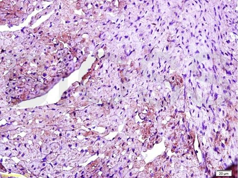 Immunohistochemistry (IHC) image for anti-Toll-Like Receptor 4 (TLR4) (AA 780-830) antibody (ABIN736491)