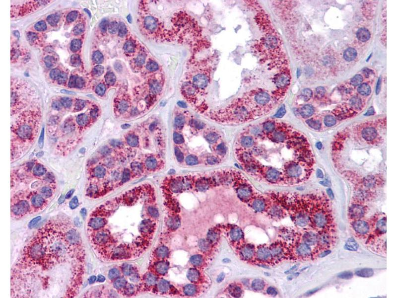 Immunohistochemistry (IHC) image for anti-p53 抗体 (Tumor Protein P53) (N-Term) (ABIN2779317)