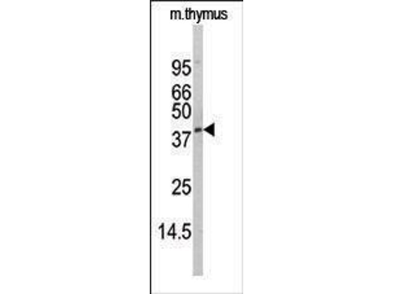 Western Blotting (WB) image for anti-serine/threonine Kinase 17a (STK17A) (AA 1-30), (N-Term) antibody (ABIN391325)