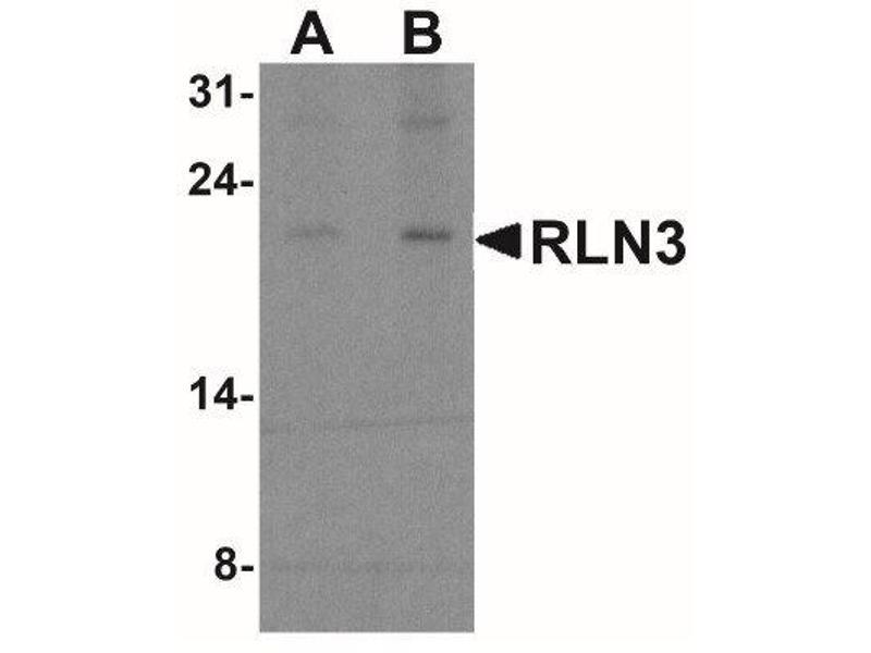 Western Blotting (WB) image for anti-Relaxin 3 (RLN3) (Center) antibody (ABIN4349931)