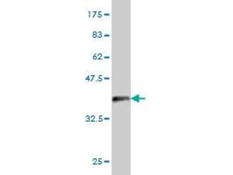 Western Blotting (WB) image for anti-Proteasome (Prosome, Macropain) 26S Subunit, Non-ATPase, 6 (PSMD6) (AA 292-390) antibody (ABIN394879)