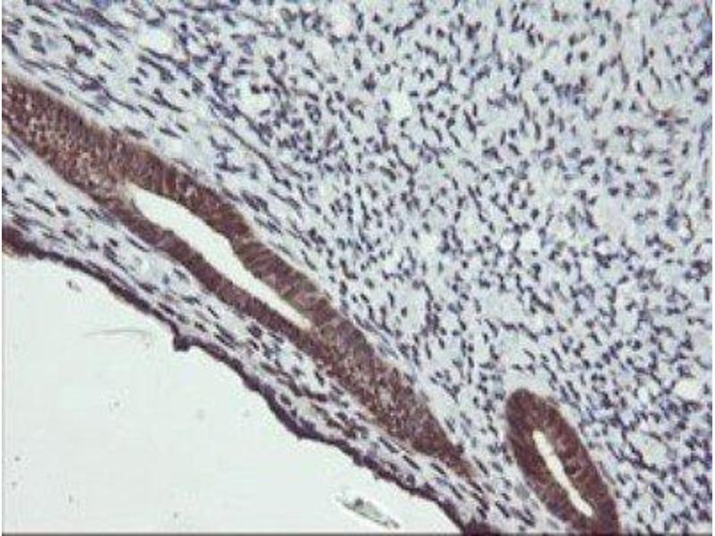 Immunohistochemistry (IHC) image for anti-Mitogen-Activated Protein Kinase Kinase 2 (MAP2K2) antibody (ABIN4333504)