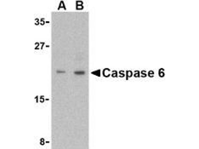Western Blotting (WB) image for anti-Caspase 6 antibody (Caspase 6, Apoptosis-Related Cysteine Peptidase) (Intermediate Domain) (ABIN499569)
