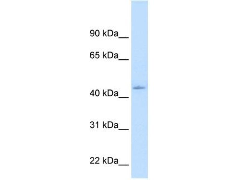 Western Blotting (WB) image for anti-Nuclear Receptor Subfamily 1, Group I, Member 3 (NR1I3) (N-Term) antibody (ABIN310698)