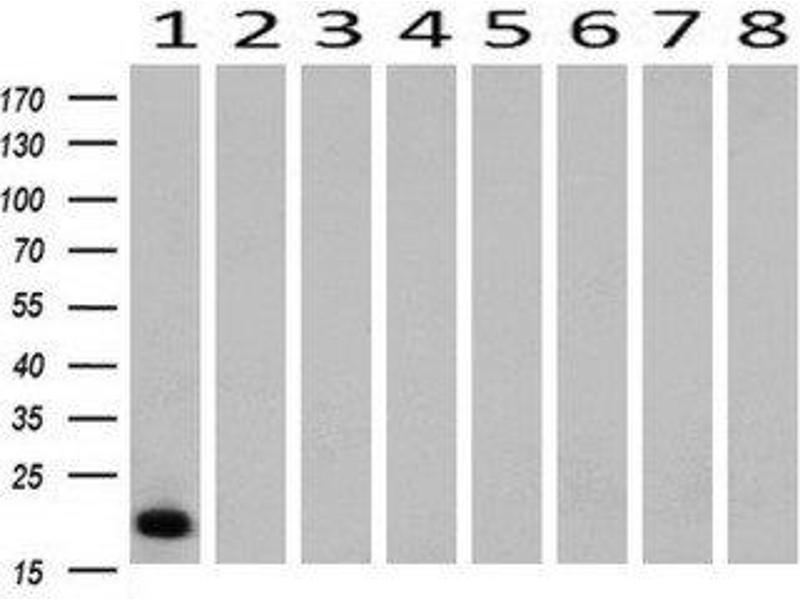 Western Blotting (WB) image for anti-CD3E antibody (CD3e Molecule, epsilon (CD3-TCR Complex)) (ABIN4291564)