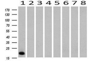 Western Blotting (WB) image for anti-CD3e Molecule, epsilon (CD3-TCR Complex) (CD3E) antibody (ABIN4291564)