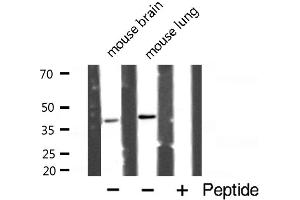 Western Blotting (WB) image for anti-Caspase 4, Apoptosis-Related Cysteine Peptidase (CASP4) antibody (ABIN6260482)