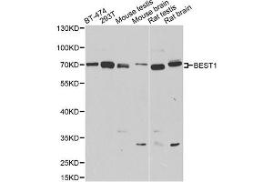 Image no. 1 for anti-Bestrophin 1 (BEST1) antibody (ABIN6569420)