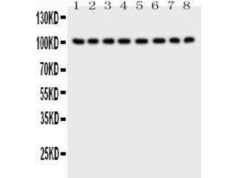 Western Blotting (WB) image for anti-MME antibody (Membrane Metallo-Endopeptidase) (AA 52-750) (ABIN3043879)