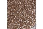 Immunohistochemistry (Paraffin-embedded Sections) (IHC (p)) image for anti-Proteasome (Prosome, Macropain) 26S Subunit, Non-ATPase, 12 (PSMD12) antibody (ABIN4348295)
