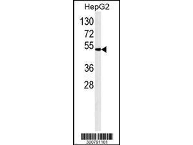 Western Blotting (WB) image for anti-Aldehyde Dehydrogenase 2 Family (Mitochondrial) (ALDH2) antibody (ABIN658993)