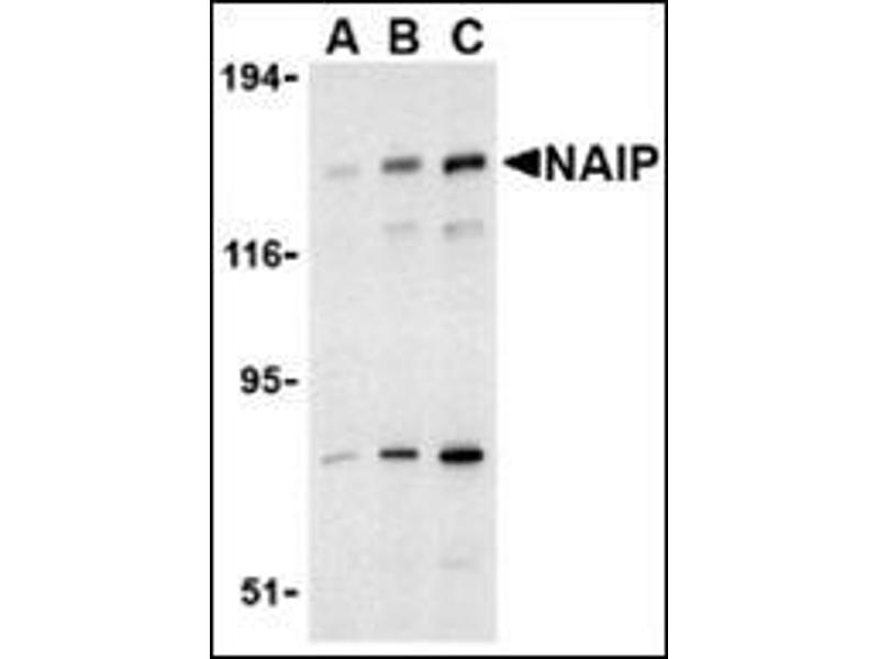 Western Blotting (WB) image for anti-NAIP antibody (NLR Family, Apoptosis Inhibitory Protein) (C-Term) (ABIN500306)