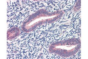 Immunohistochemistry (IHC) image for anti-TWIST1 antibody (Twist Homolog 1 (Drosophila)) (C-Term) (ABIN2780347)
