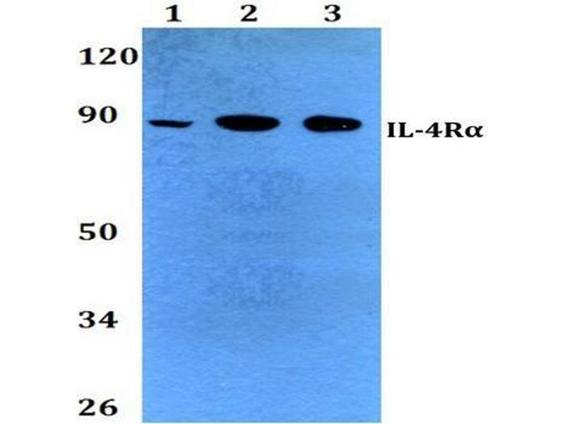 Western Blotting (WB) image for anti-IL4 Receptor antibody (Interleukin 4 Receptor) (ABIN498468)
